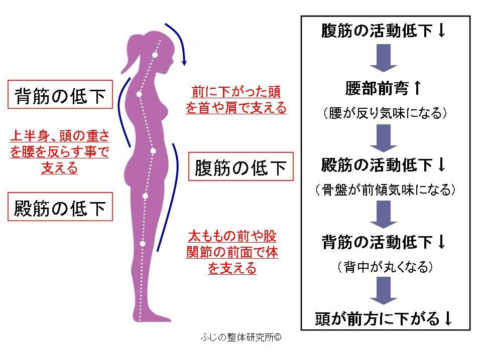 反り腰姿勢の解説