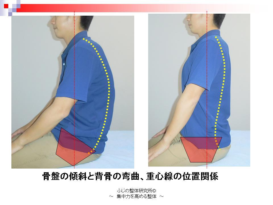股関節可動域が狭くなると骨盤が後傾する