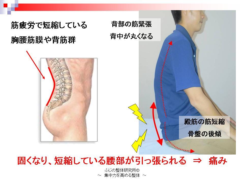 腰部の発症機序