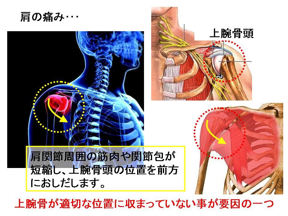 肩関節の痛み