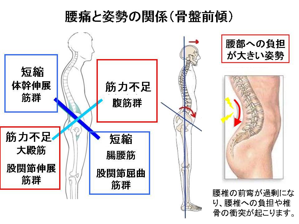 腰痛と姿勢の関係